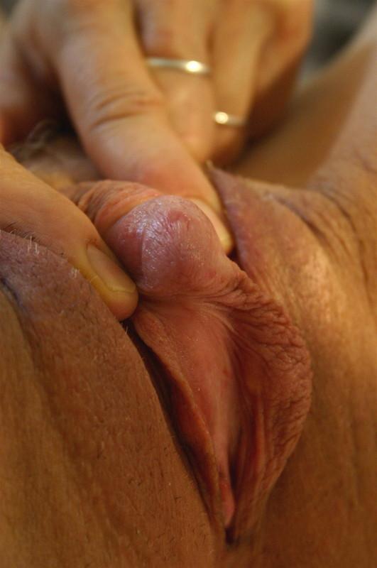 clitos